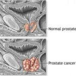 Healthy men don't need prostate screening – US panel