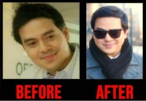 johnlloyd_before_After