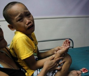 Christian Jay Comedor, 10 years old, of Baesa in Quezon City, was rushed by her mother, Julie, on New Year's Eve (December 31, 2013) at the Quezon City General Hospital for injuries caused by the infamous piccolo firecracker. It is a belief in the mostly Catholic nation that making noise to welcome the New Year drives evil spirits away and ushers in good luck. (MNS photo)